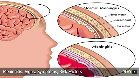Meningitis: Signs, Symptoms, Risk Factors