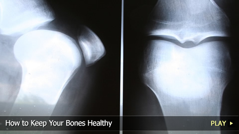 How To Keep Your Bones Healthy