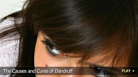 The Causes and Cures of Dandruff