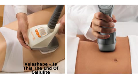 Goodbye Cellulite With Velashape